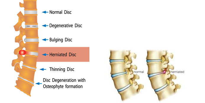 Are You At Risk Of Herniated/Slipped/Ruptured disc?