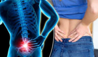 Lower Back Pain Being Treated Badly On A Global Scale, Study Says