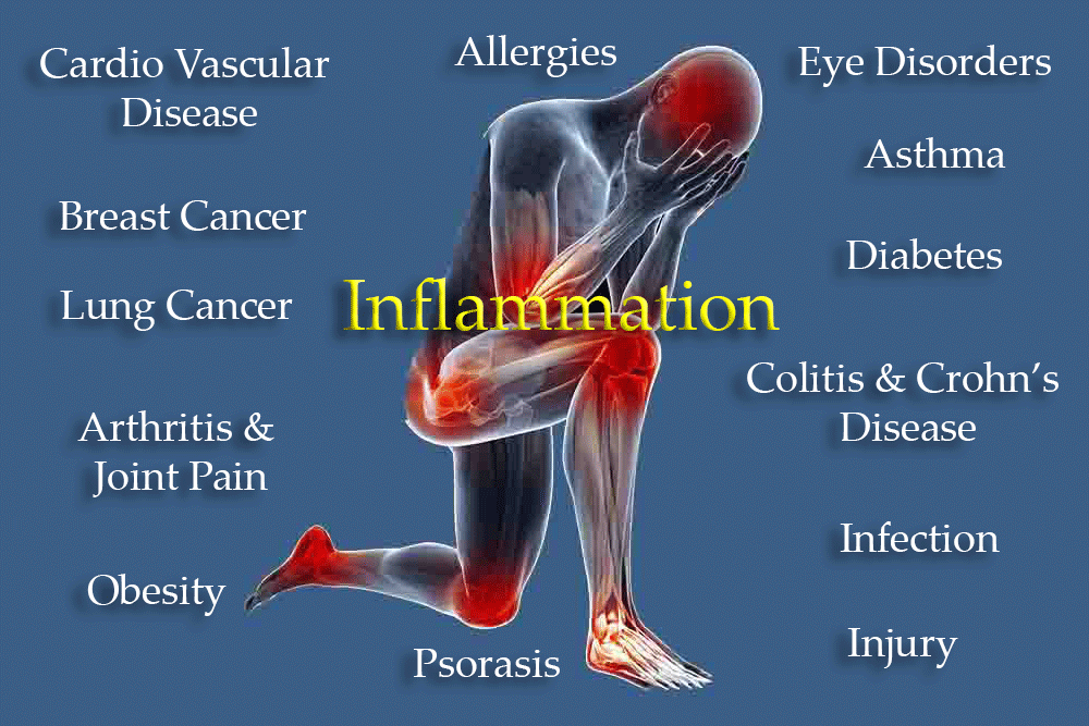 Causes-of-Inflammation