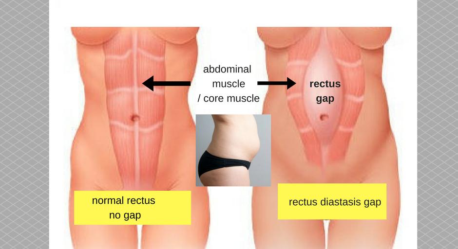 tummy gap