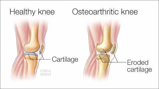 ostearthritis