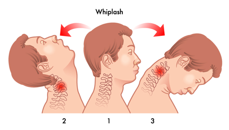 Neck Pain Or Whiplash? Know The Difference