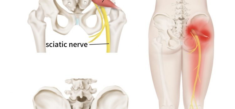 Could You Be Suffering From Piriformis Syndrome and Not Sciatica?