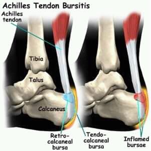 Suffering From Heel Pain?